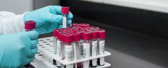 Licitación suministro reactivos de diagnóstico molecular para ICS de Soria
